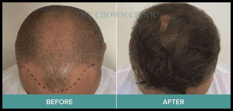 hair transplant sydney