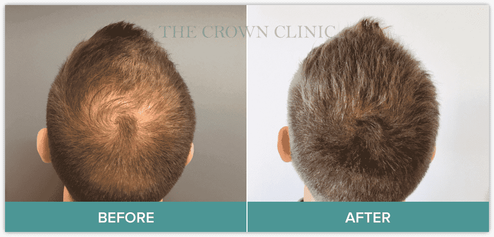 scalp micropigmentation sydney