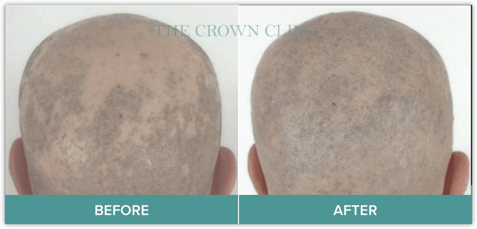 scarring hair loss before and after