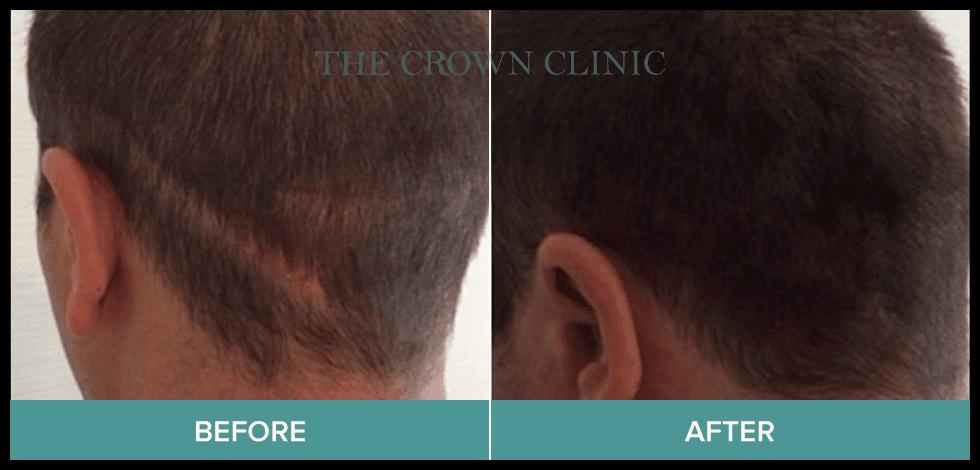 scarring hair loss sydney